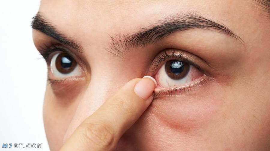 علاج انتفاخ تحت العين طبيعي ا وطبي ا