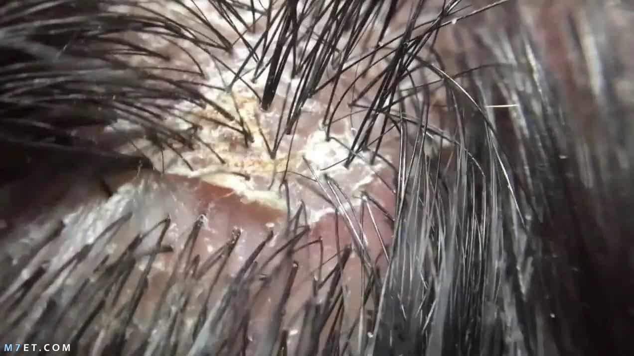 أنواع قشرة الرأس